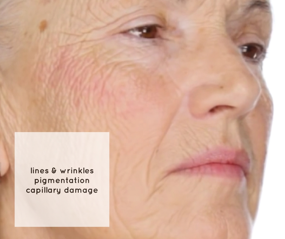 facials for ageing skin skin clinic Melbourne