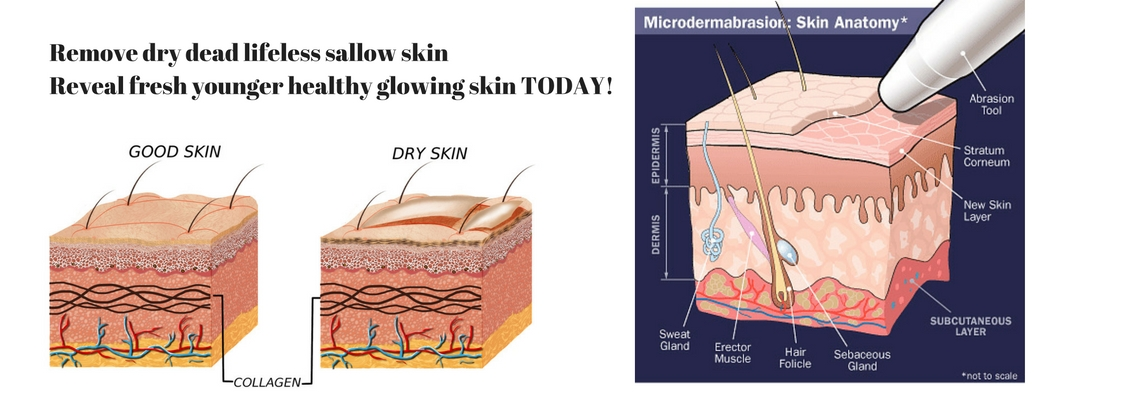 Microdermabrasion Williamstown Anti-ageing Facial