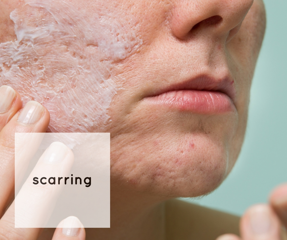 facials for scarring skin clinic Melbourne